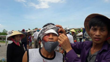 July 2016: Formosa protester beaten up by polices.